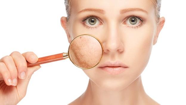 Cómo quitar las manchas de la cara