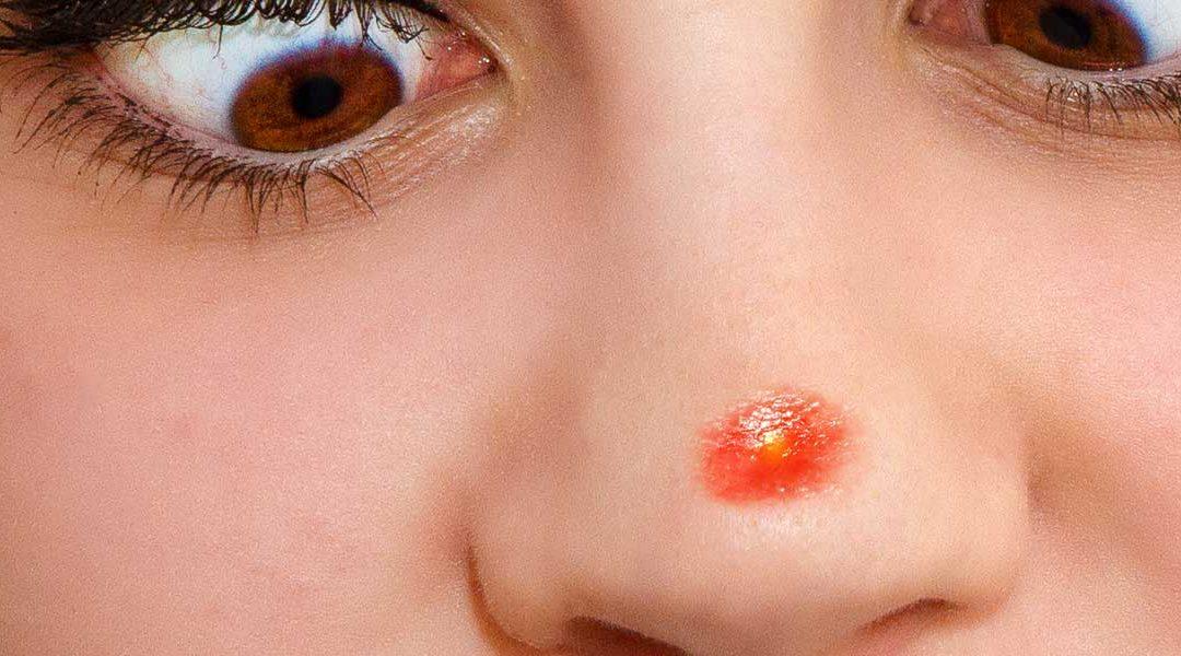 Cómo quitar las espinillas de la nariz
